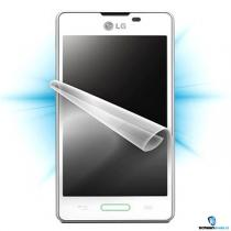 ScreenShield pro LG Optimus L5 II